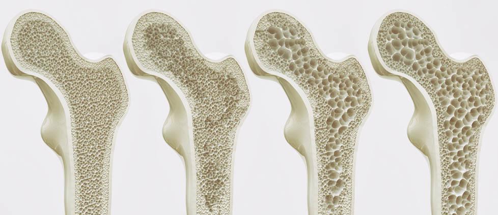 Osteoporoza kosc leczenie rozpoznanie profilaktyka