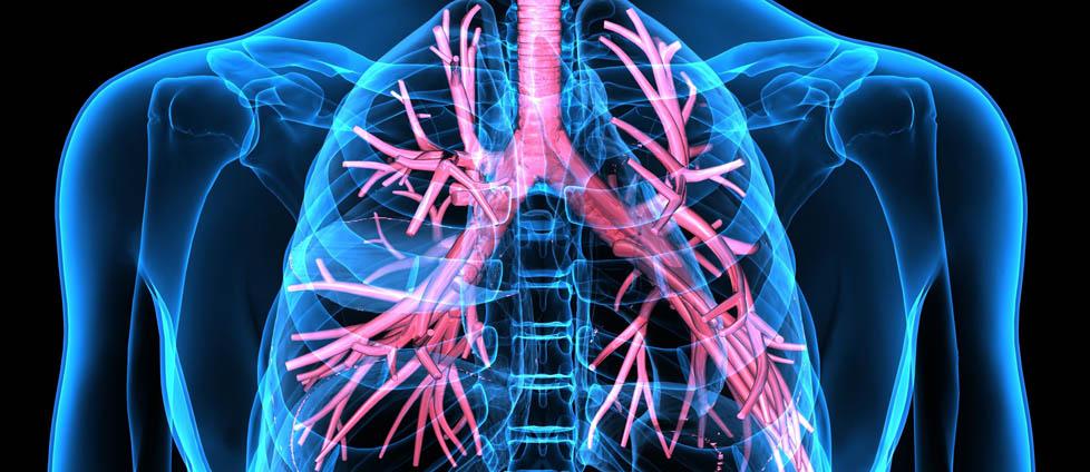 Sarkoidoza płucna